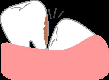 智歯周囲炎イラスト