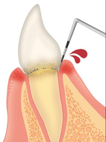 歯肉炎イラスト画像